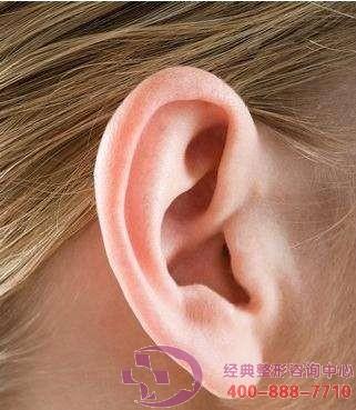 耳轮缺失修复术好吗