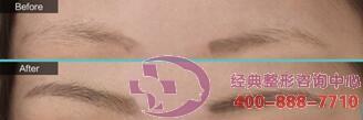 铜仁白领无痕植眉,就是这么眉清目秀