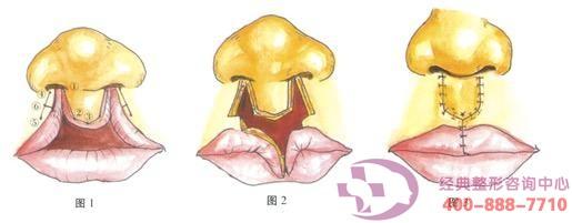 丹东晶馨唇裂修复手术是可靠的吗