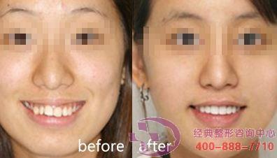 湘潭雅美3D全隐形牙齿矫正,整齐的牙齿颜值高