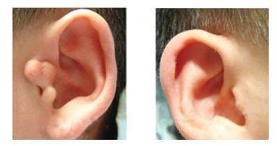 丹东晶馨副耳整形的手术特点如何