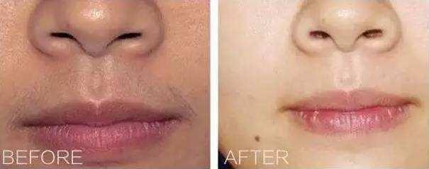 激光脱唇毛对人体有副作用吗