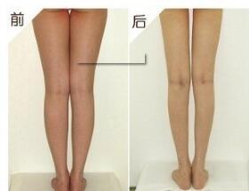 腿部吸脂的治疗费用是多少钱