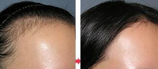 毕节西南发际线种植,改变你的头发稀疏问题