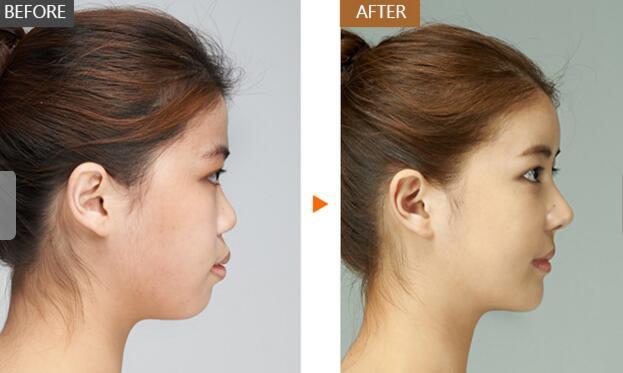 毕节西南综合隆鼻整形,让原本塌扁的鼻子形成立体挺翘的状态