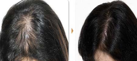 淮安华美头发种植,茂密头发