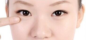 小眼睛肿眼泡可以做双眼皮整形吗