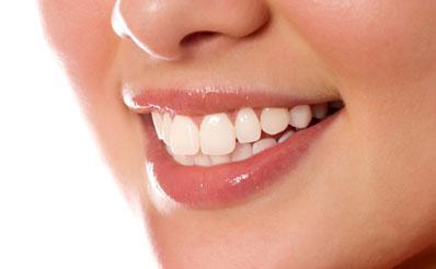黑龙江伊春牙齿矫正价格是多少
