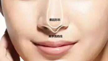 假体隆鼻术后多久可以挤黑头