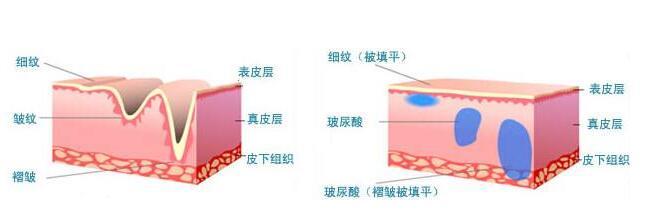 玻尿酸除皱的效果可以维持多久