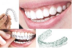 武汉牙齿矫正有什么方法