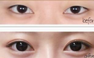 永州新唯美双眼皮,迷人双眸很闪耀