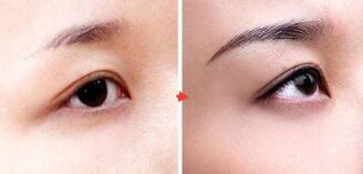 铜仁韩美时光眉毛种植,让自己的眉毛变得更加美观