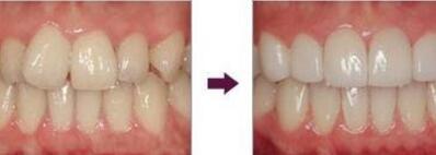 铜仁韩美时光牙齿矫正,拥有一口洁白整齐的牙齿