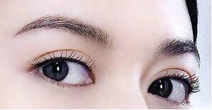 潍坊华美埋线双眼皮术后3天能够恢复吗