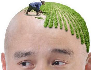 太原美之妍头发种植后多久开始生长