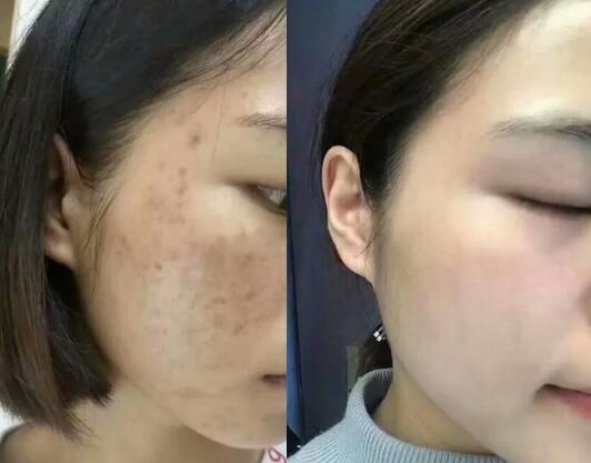 脸上长斑怎么办,什么方法祛斑比较有效呢?