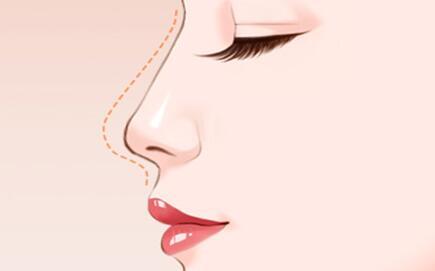 鼻子塌陷怎么办,我们该如何改善呢?