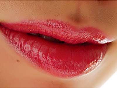 唇缘修复术后一般不留瘢痕吗