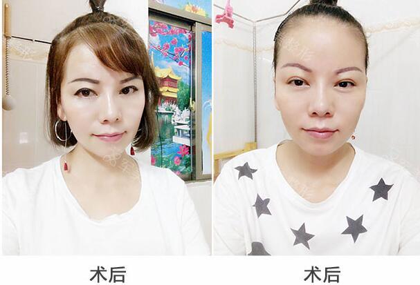 广州军美改脸型,拥有小V脸