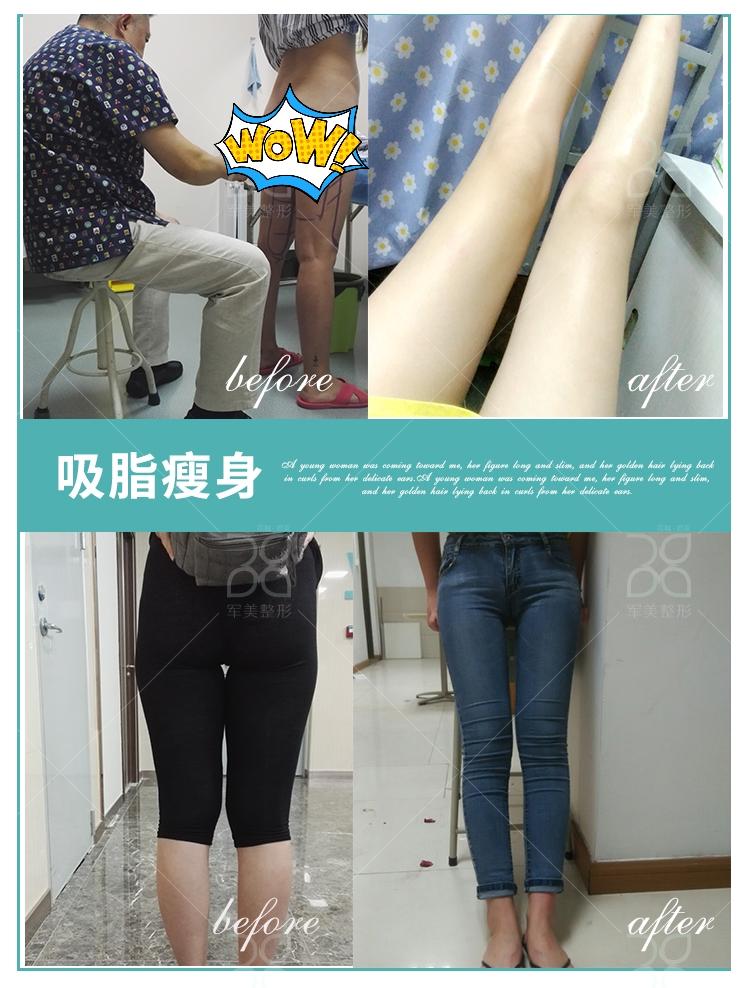 广州军美大腿吸脂,拥有苗条瘦小的腿部
