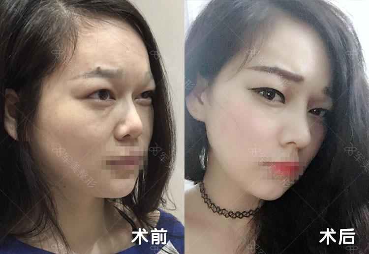 广州军美复合隆鼻,有个坚挺好看的美鼻子