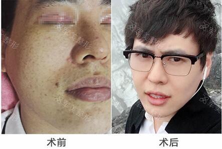 广州军美激光祛斑,轻松改善斑点问题