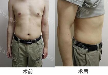 广州军美冷冻溶脂,有效改善肥胖现象
