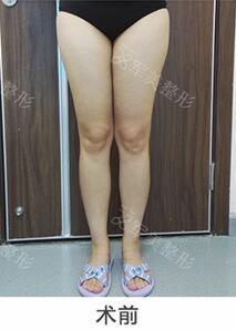 广州军美日式微创无痕吸脂术,终于可以穿短裤露出我的大长腿了