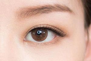 西安西美开眼角手术术后会有疤吗