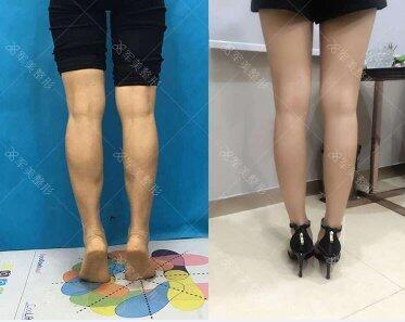 广州军美注射瘦小腿,修长双腿