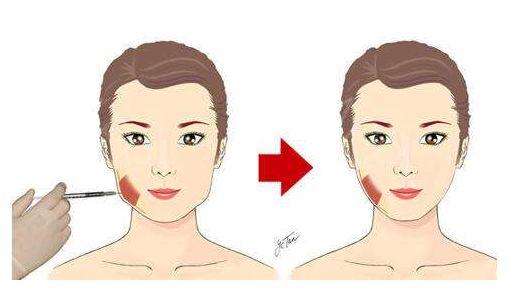 面部注射物取出有两大注射物