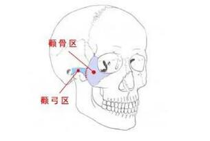 宜昌颧骨整形不会导致两侧高低不齐