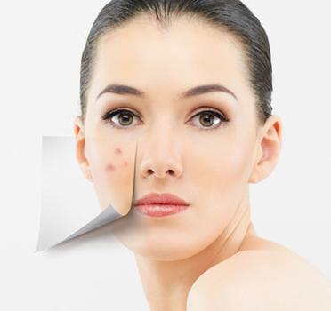 西安西美痘印痘疤可以用激光技术去掉