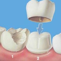 种植牙不会影响日常吃饭问题