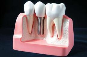 种植牙的两个特点