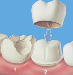 潍坊华美全瓷牙的4个优点