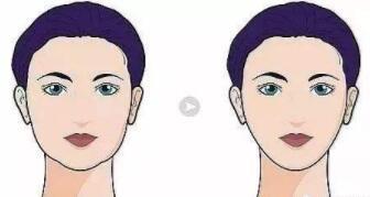 颊脂垫取出手术取出方式