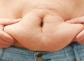 腰腹吸脂的切口不会影响美观