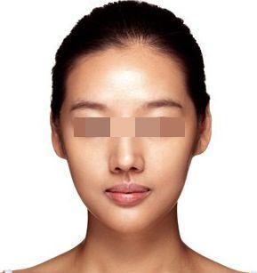 山东莱芜瘦脸针价格3000-6000元