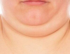 面部吸脂瘦脸的4大方法