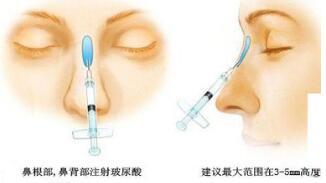 隆鼻手术的三大方法