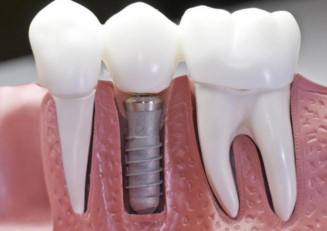 西安西美种植牙适合的2类人群