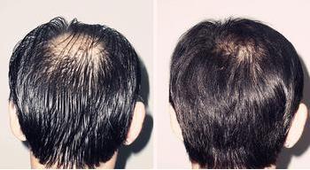连云港美缔头发种植,乌黑茂密的秀发