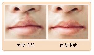 湖南美研唇裂修复,恢复正常完好嘴唇