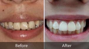 平顶山艺美牙齿美白,一口洁白整齐的牙齿