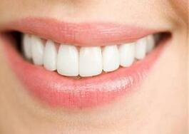 美容冠牙齿美白的优点有三个方面
