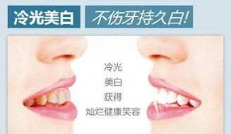 牙齿美白的方法还是很多的