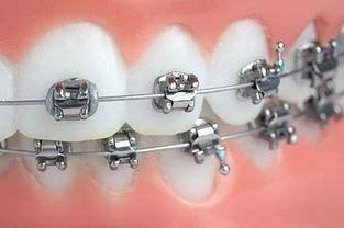 大连新华美天牙齿矫正什么时期适合