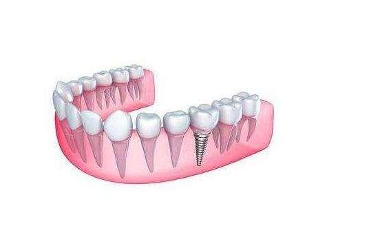 大连新华美天种植牙有三大护理方法